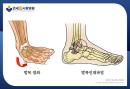 배우 고아라의 발목인대부상 사례로 보는 조기 치료의 중요성