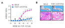 관절염 자연 치유 돕는 3개 유전자 찾았다