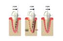 [치아교정 치료 Q&A] 전체 교정시 24~30개월…중장년층도 가능